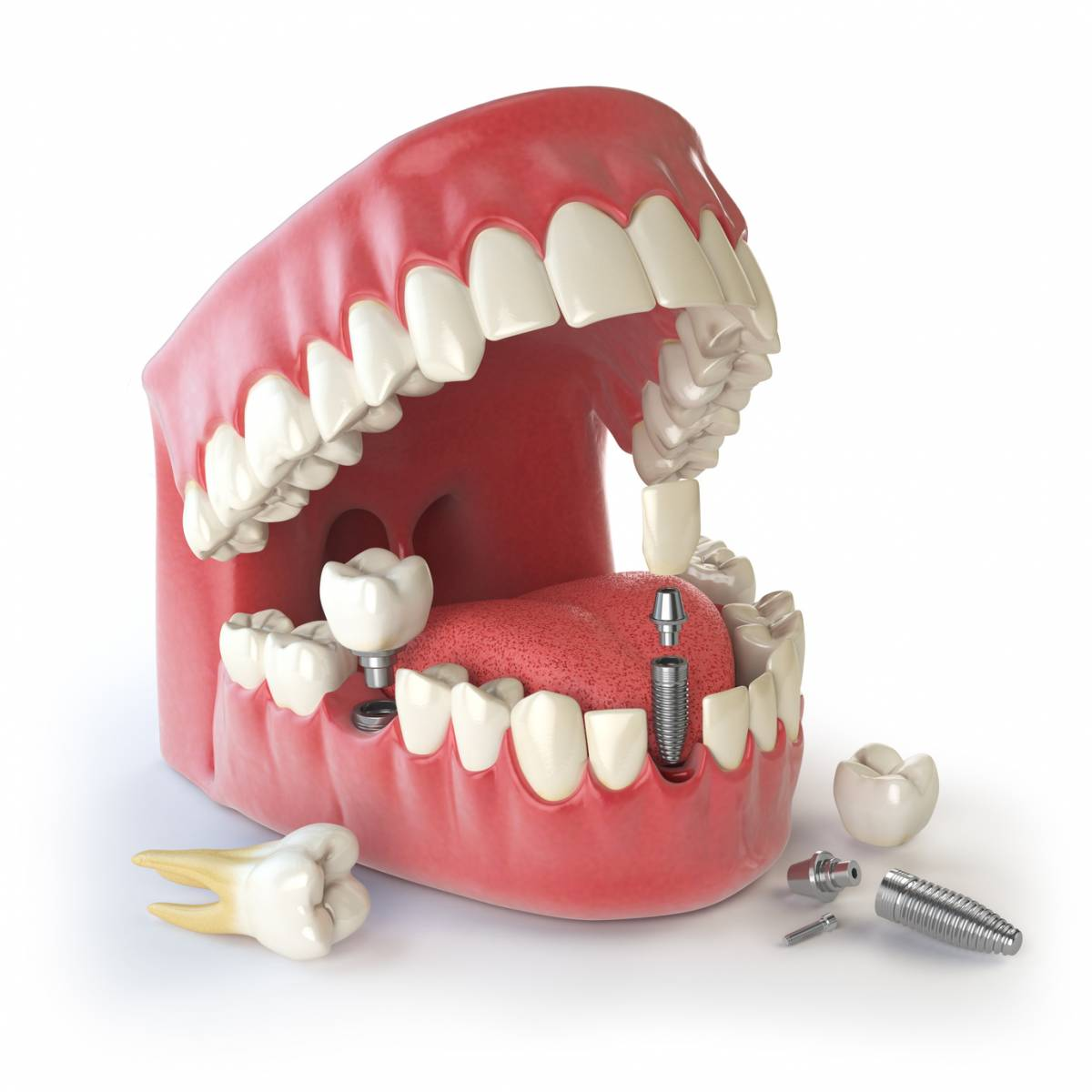 Centre dentaire Bayard : Pourquoi opter pour Bayard à Lyon ?