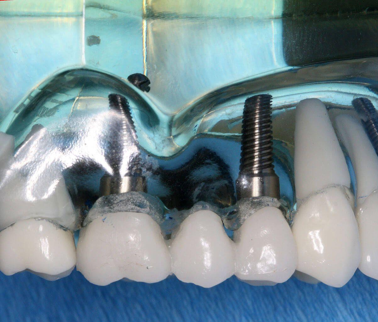 Implant dentaire : quelle est la couleur de l'implant ?